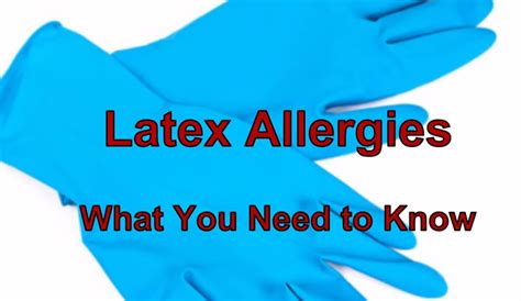 Icd 10 code for latex allergy status jpg 700x406